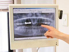 おいかわ歯科クリニック デジタルレントゲン